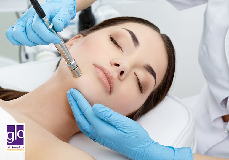 5 Reasons To Consider a Microdermabrasion Treatment