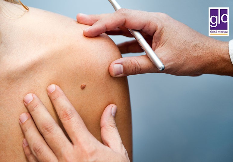 Say Goodbye to Skin Moles With These 3 Treatments