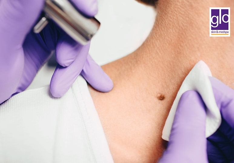 Top Tips For Mole Removal Aftercare