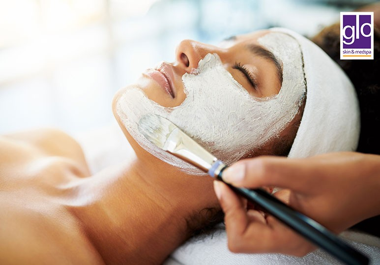 How to Prepare Your Skin For a Chemical Peel