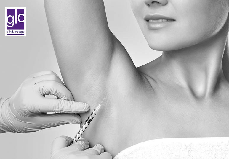 Your Guide to Botox Treatments For Hyperhidrosis
