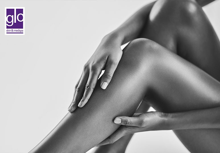 6 Incredible Benefits of Opting For Laser Hair Removal