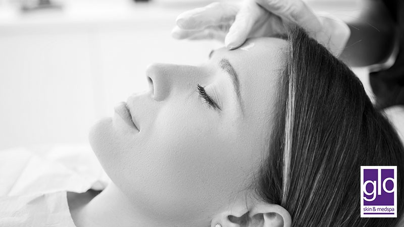 How to Take Care of Your Skin Following a Chemical Peel Treatment